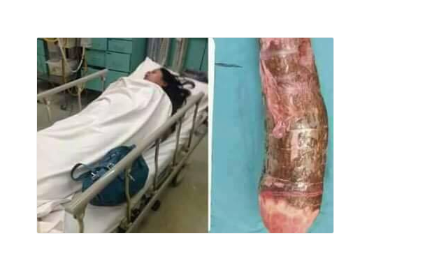 Photo of Woman in hospital after 18inch cassava she was using to masturbate gets stuck in vagina [PHOTOS/VIDEO]