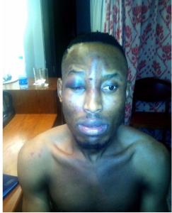 Police declare Burna Boy wanted